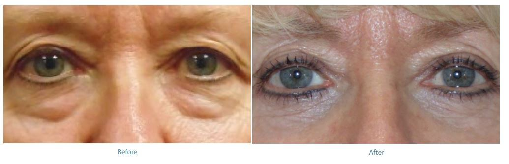 Lower Eyelid Lift (Blepharoplasty) Torrance