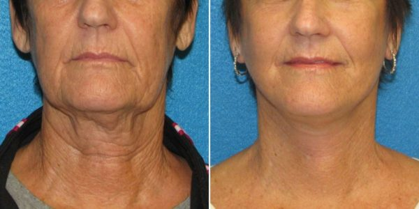 How Much Does a Neck Lift Cost Torrance